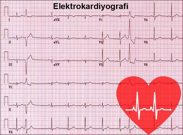 EKG Nedir? EKG ve Önemi Nedir? 4