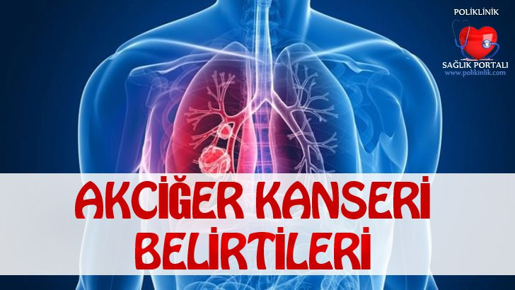 Akciğer Kanseri Belirtileri 1