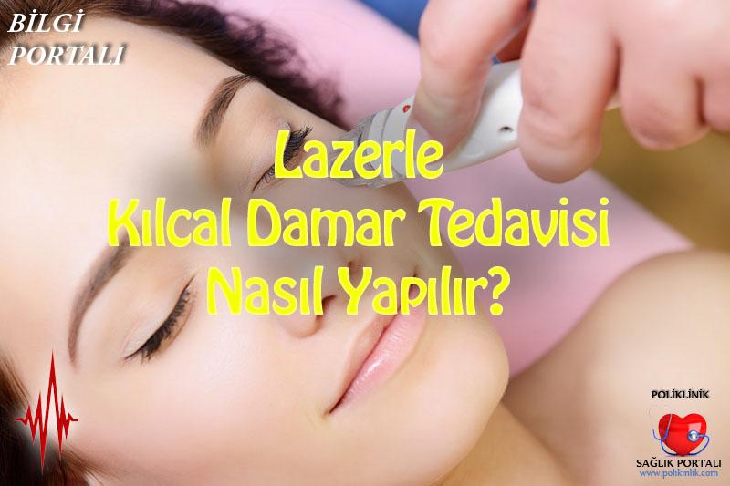 Lazerle Kılcal Damar Tedavisi Nasıl Yapılır? 12